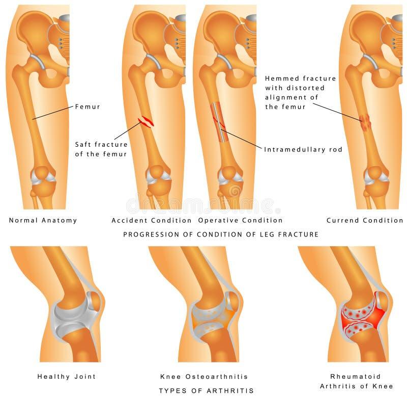 Download Fractures of Femur stock vector. Image of human, femur - 40184203
