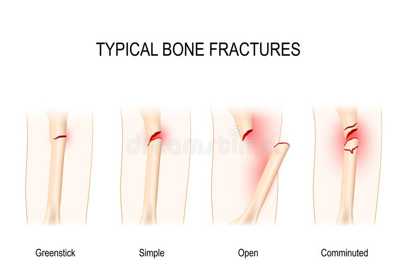 Fractures types Pour l'usage médical illustration libre de droits