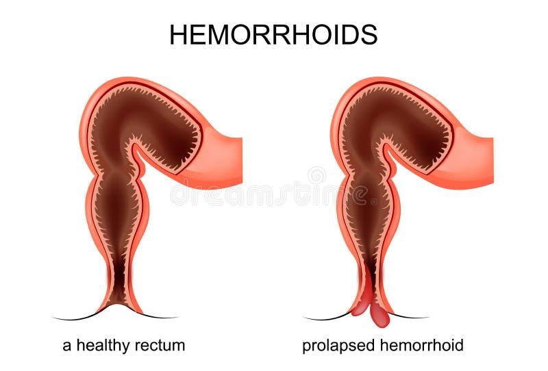 Framfall av de hemorrhoidal åderna vektor illustrationer