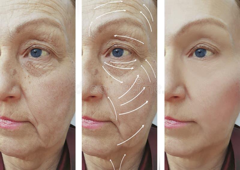 Framsida äldre kvinna, skrynklor, för kontrastkorrigering för vård- plast- utfyllnadsgods tålmodiga tillvägagångssätt före och ef arkivbilder