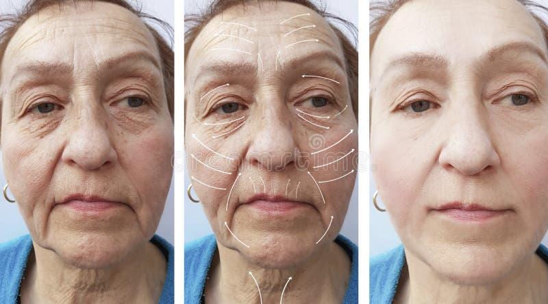 Framsida äldre kvinna, skrynklor, för kontrastkorrigering för vård- utfyllnadsgods tålmodiga tillvägagångssätt före och efter, pi arkivbilder