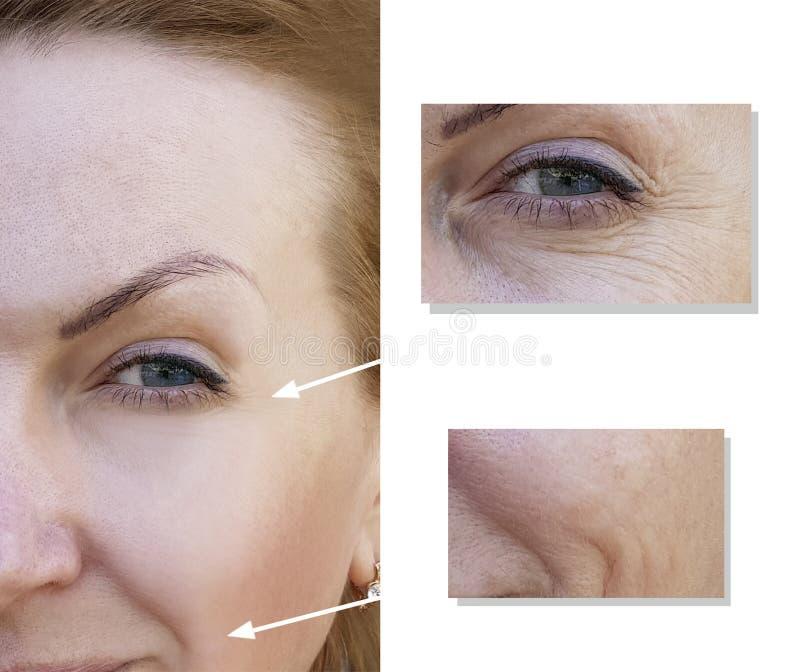 Framsida av collagen för framsida för behandling för dermatologi för äldre kirurgikvinnaskrynklor en ung, före och efter tillväga royaltyfri foto