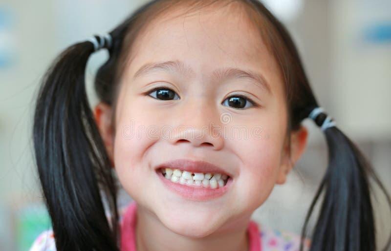 Framsida av den lilla asiatiska barnflickan med ruttna tänder som är brutna och fotografering för bildbyråer