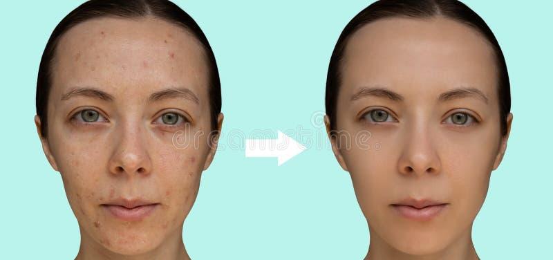 Framsida av en ung flicka efter ett kosmetiskt tillvägagångssätt av den kemiska skalande närbilden arkivbild