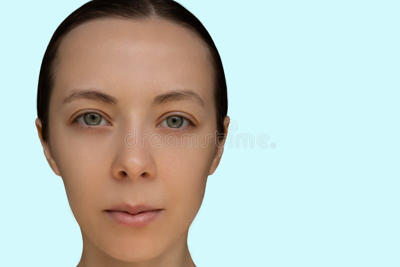 Framsida av en ung flicka efter ett kosmetiskt tillvägagångssätt av den kemiska skalande närbilden arkivfoto