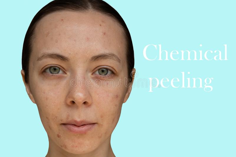 Framsida av en ung flicka efter ett kosmetiskt tillvägagångssätt av kemisk skalning royaltyfria bilder