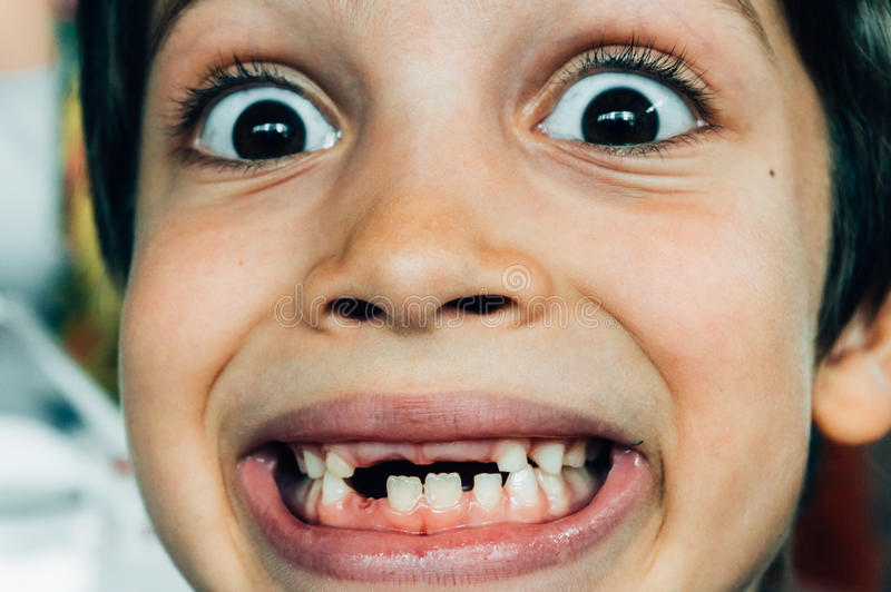 Framsida av pojken som ler med saknade tänder royaltyfria bilder