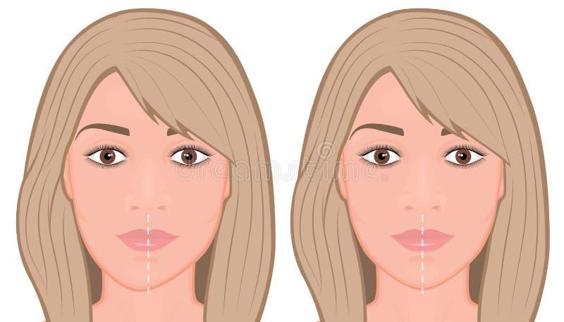 Framsida för kirurgi för correctiom för framsidafront_Jawasymmetri royaltyfri illustrationer