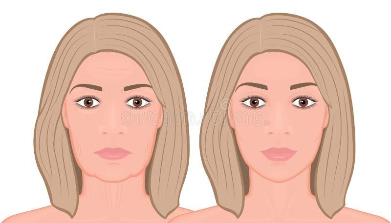 Framsidafront_ Front Face att lyfta kirurgi stock illustrationer