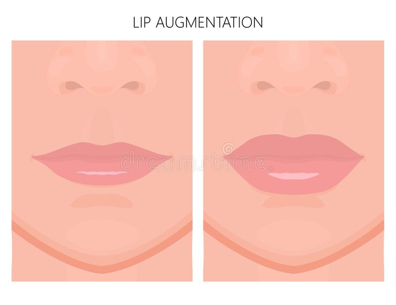 Framsidafront_Lipstigande stock illustrationer