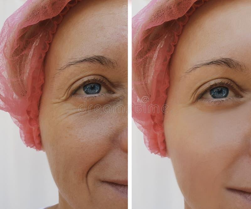 Framsidakvinnan rynkar anti--åldras tillvägagångssätt för tålmodig skönhetsmedel för dermatologi före och efter royaltyfria bilder