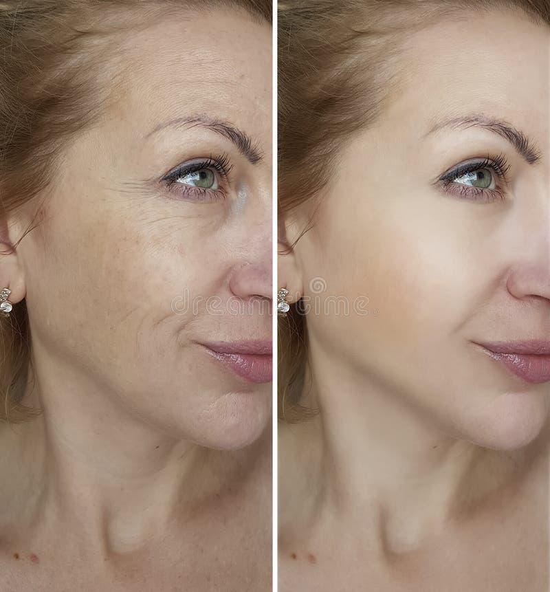 Framsidakvinnaskrynklor före och efter royaltyfri bild
