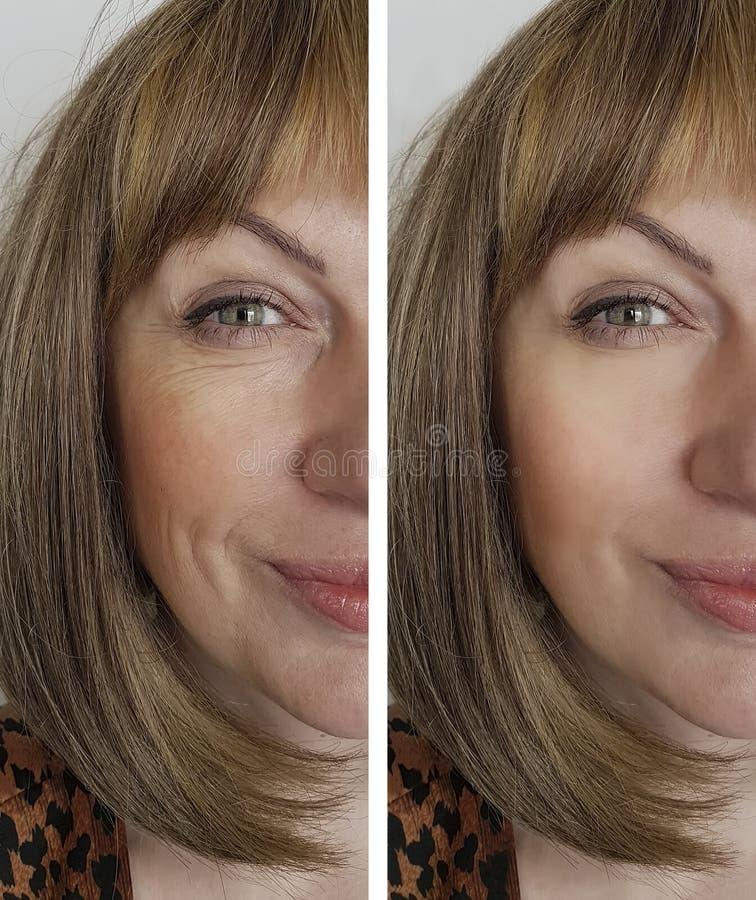 Framsidakvinnaskrynklor före och efter arkivbilder