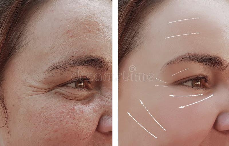 Framsidakvinnaskrynklor på tillvägagångssätt för framsida före och efter, pil royaltyfria foton