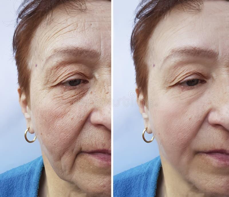 Framsidan av en äldre kvinna rynkar att hydratisera före och efter tillvägagångssätt arkivfoto