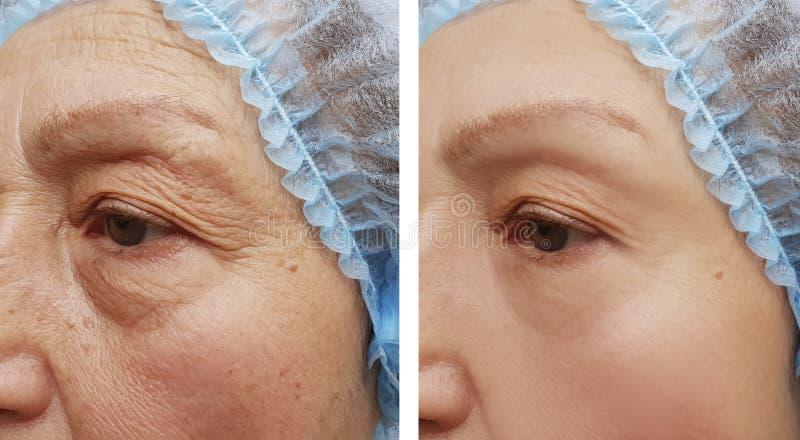 Framsidan av en äldre kvinna rynkar att hydratisera kliniska före och efter tillvägagångssätt för terapi royaltyfri foto