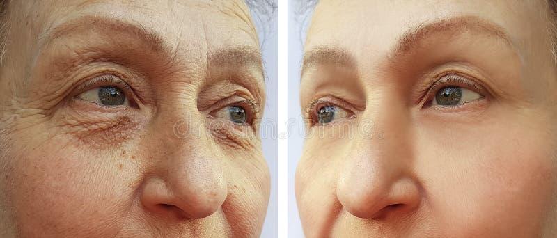Framsidan av en äldre kvinna rynkar att hydratisera tillvägagångssätt för borttagningsdermatologi före och efter arkivbild