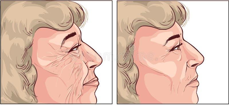 Framsidaskrynklor stock illustrationer