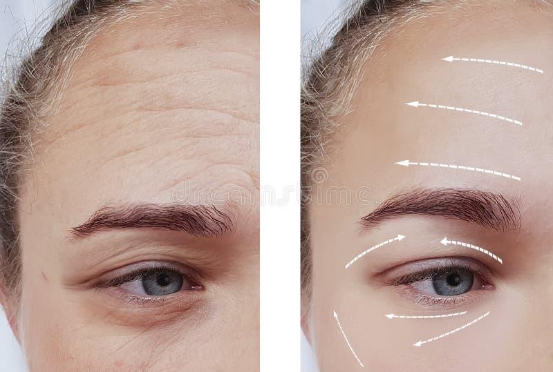 Framsidaskrynklor för efter cosmetologyskillnaden som lyfter tålmodig tillvägagångssättpilbehandling royaltyfri bild