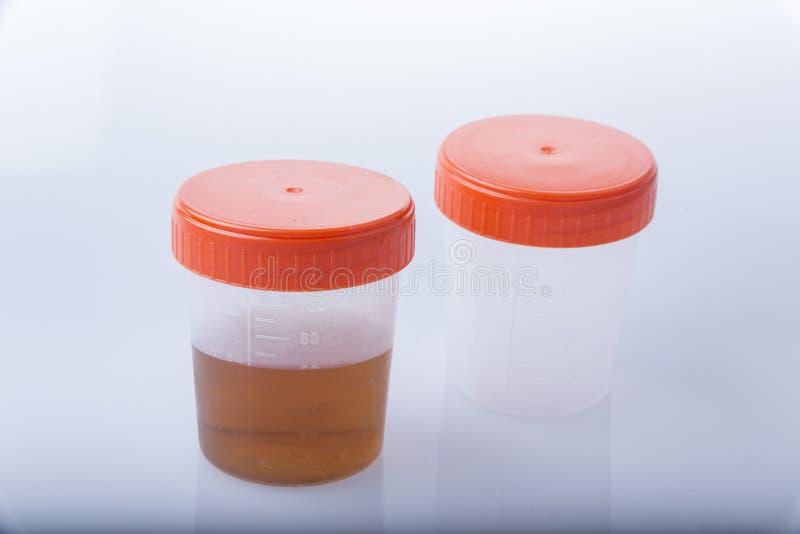 Frasco médico do espécime de urina imagens de stock royalty free