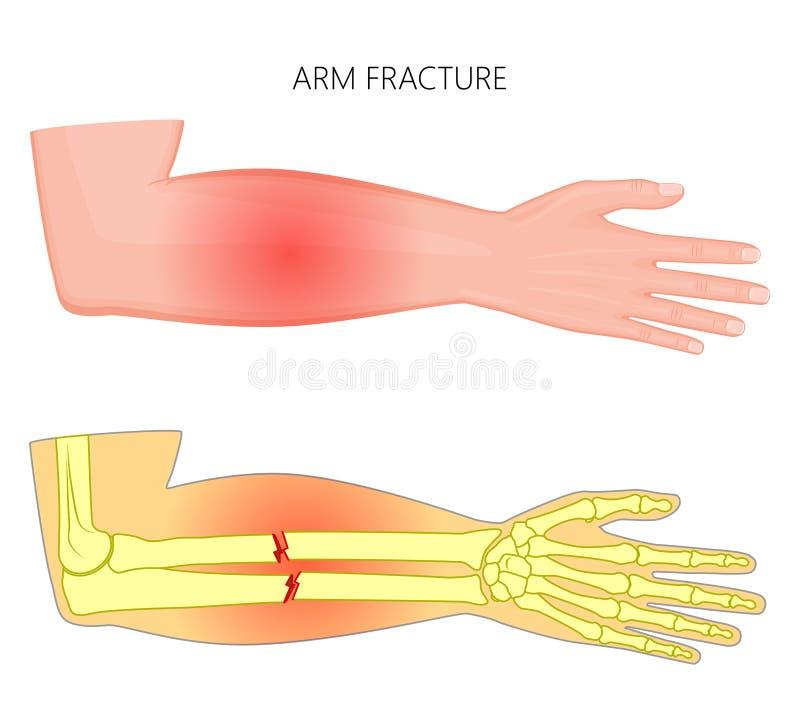 Frattura del fracture_Hand dell'osso illustrazione di stock