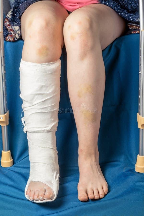 Frattura della gamba in gesso e grucce fotografia stock libera da diritti