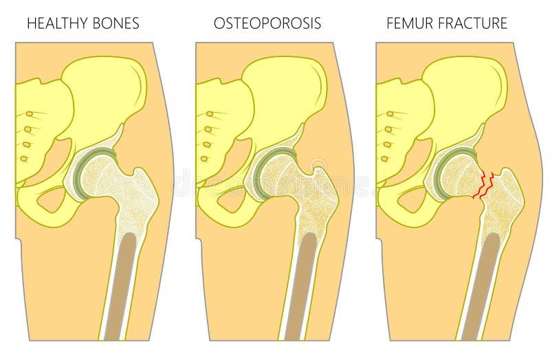 Frattura e dislocazione del femore di Osteoporosis1_with illustrazione vettoriale