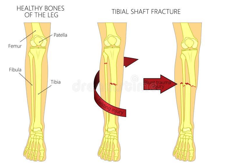 Frattura fracture_Tibial dell'asse dell'osso illustrazione vettoriale