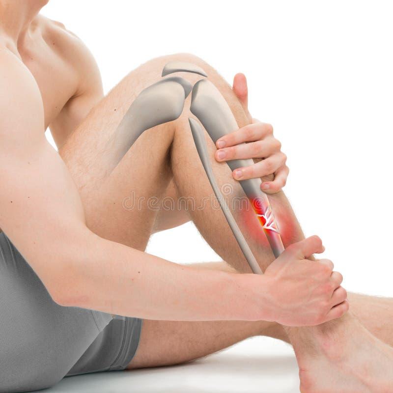Frattura polverizzata della tibia - illustrazione di frattura 3D della gamba illustrazione vettoriale