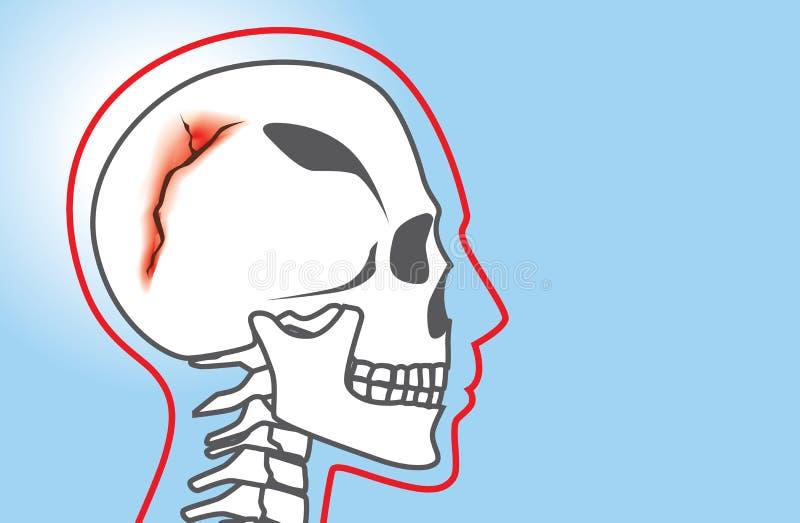 Fratura do crânio ilustração royalty free