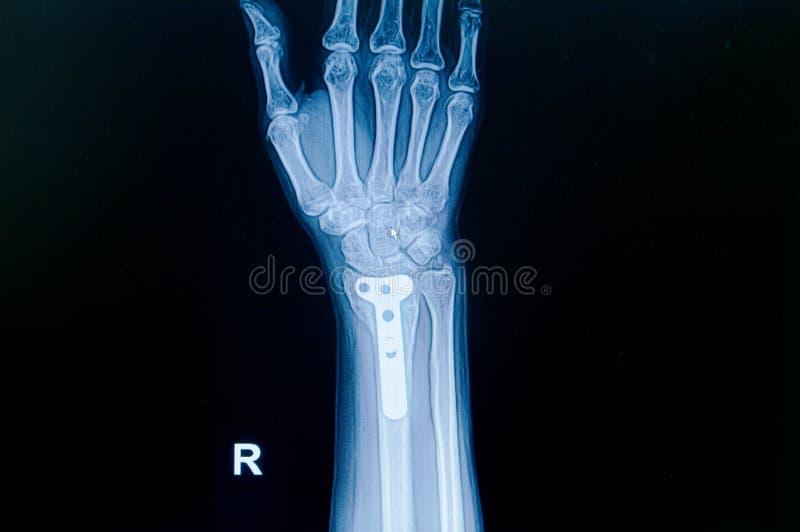Fratura do pulso do raio X do filme: mostre a fratura o raio longe do ponto de origem imagens de stock royalty free