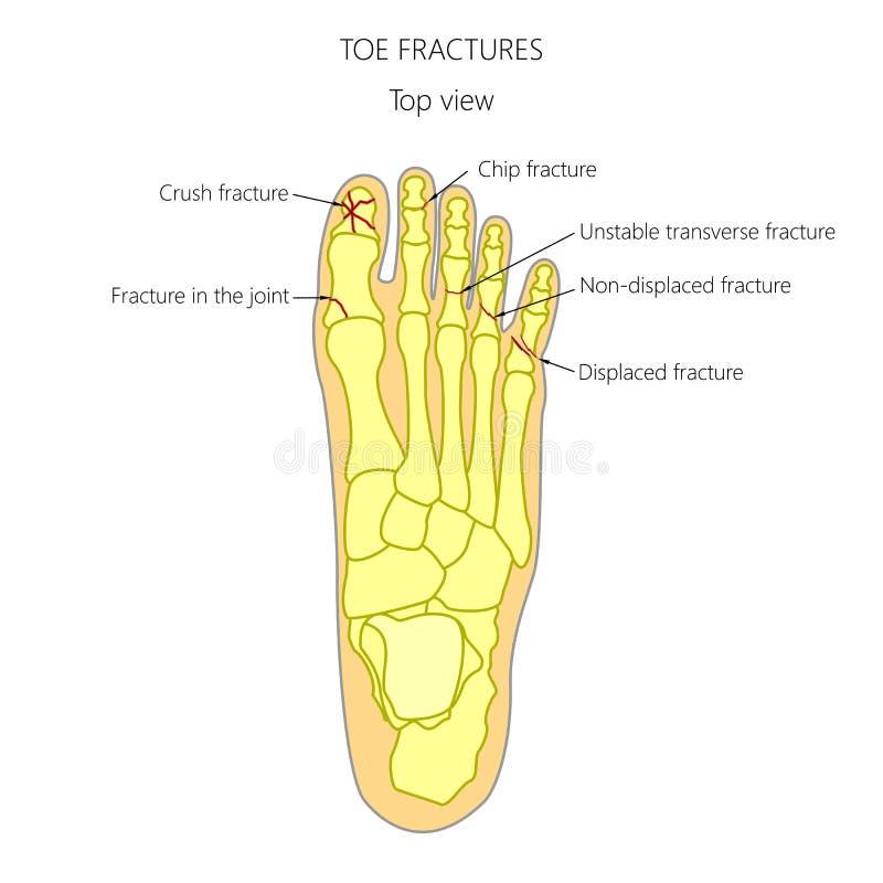 Fraturas do dedo do pé ilustração stock