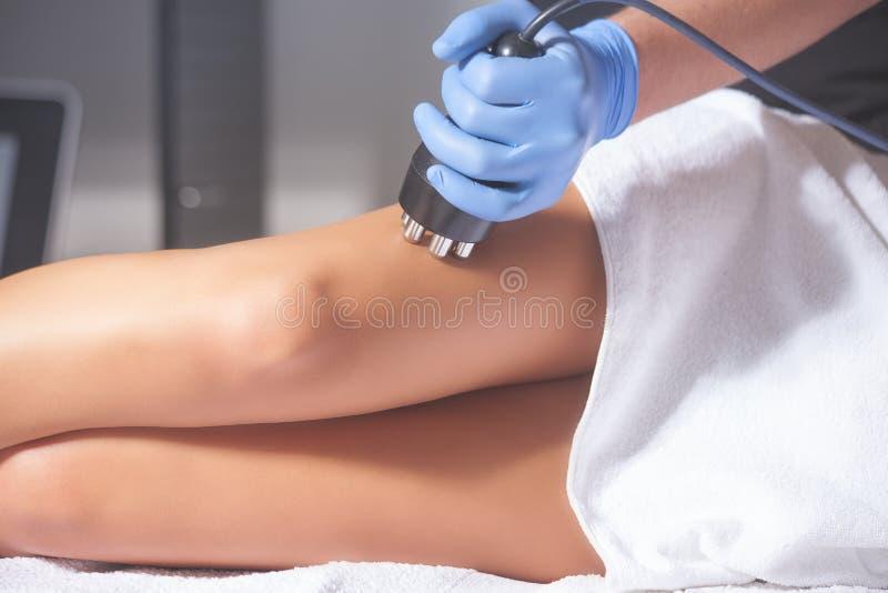 Frau AntiCellulitebehandlung stockbild
