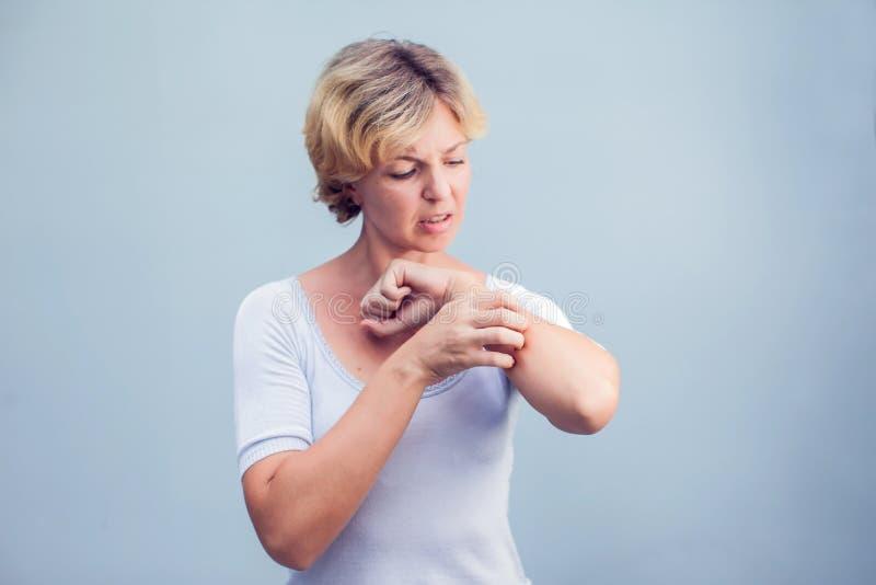 Frau, die ein Jucken auf weißem Hintergrund verkratzt Empfindliche Haut, F lizenzfreies stockfoto