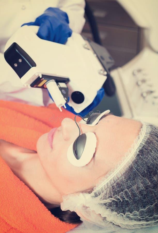 Frau, die Haar vom Gesicht mit Laser entfernt stockfoto