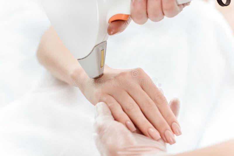 Frau, die an Hand Laser-Hautpflege empfängt stockbilder