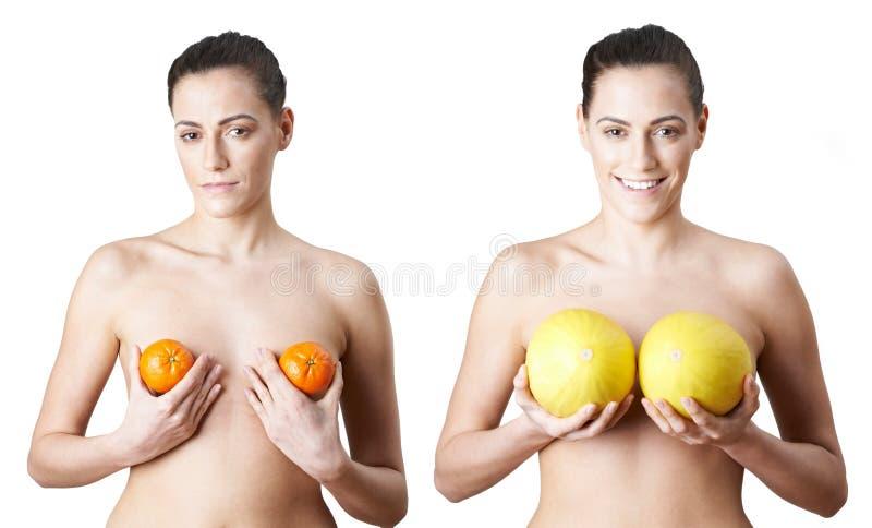 Frau, die Satsumas und Melonen hält, um Brust Enlargeme zu veranschaulichen lizenzfreies stockbild