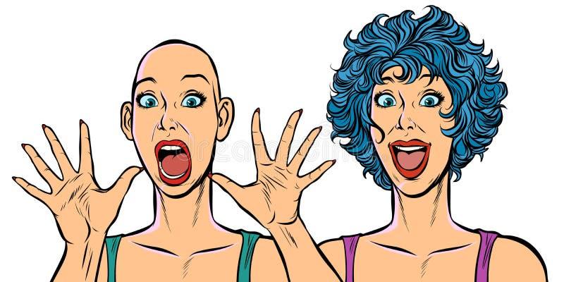 Frau kahl und mit dem Haar, menschliche Gesundheitsprobleme stock abbildung