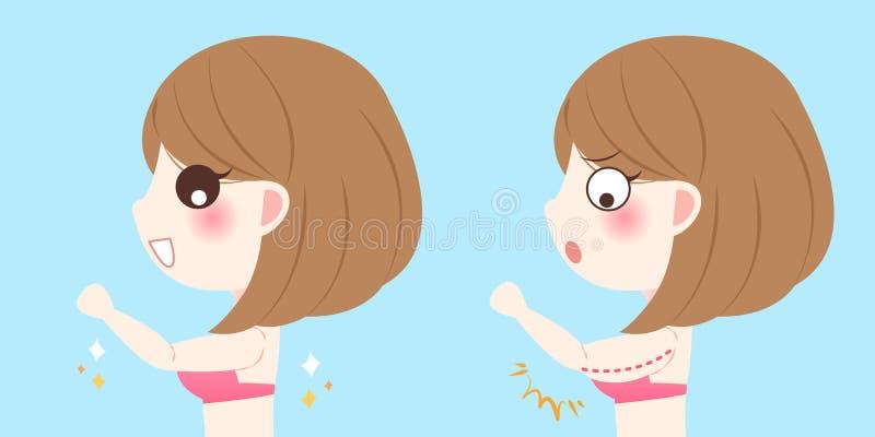 Frau mit Bingoflügeln stock abbildung