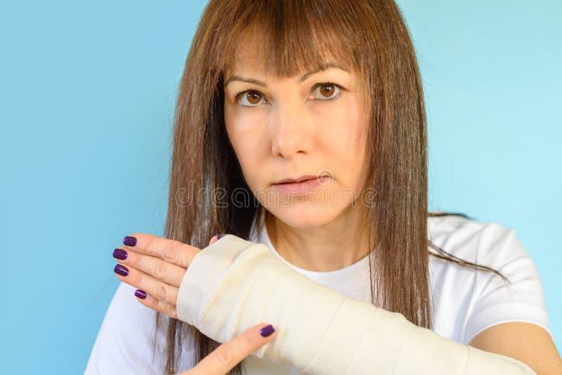 Frau mit dem gebrochenen Armknochen in der Form, vergipste Hand auf blauem Hintergrund stockbild