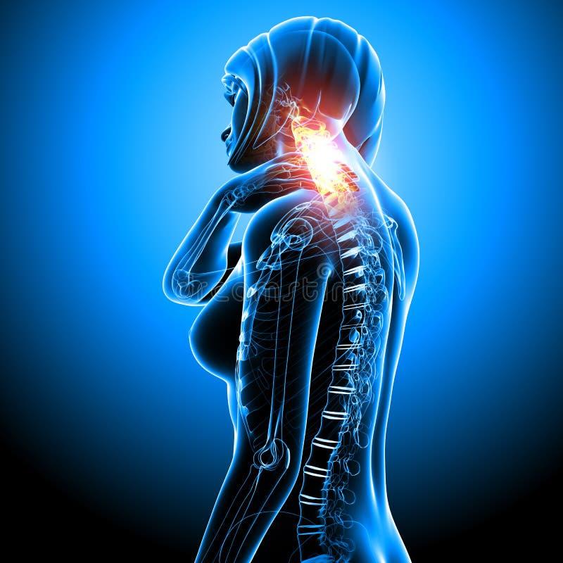 Frau mit Nackenschmerzen im Blau stock abbildung