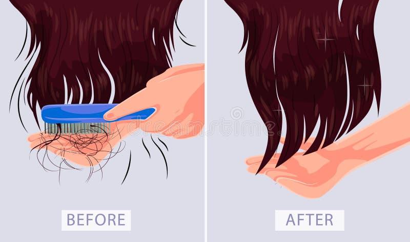 Frau mit Haarproblem, Fall, Alopezie, Schaden, Vektorillustration, die vor nachher darstellt lizenzfreie abbildung