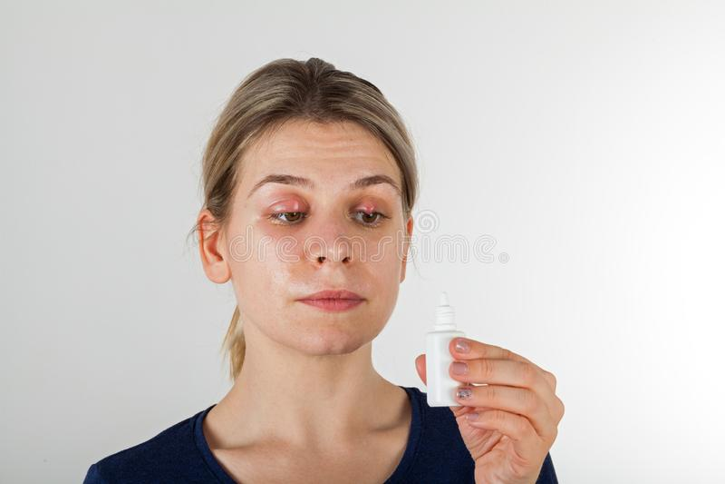 Frau mit schwerer Augeninfektion lizenzfreie stockfotos