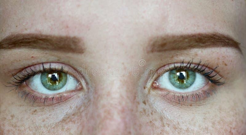 Frau mit Sommersprossen lizenzfreies stockbild