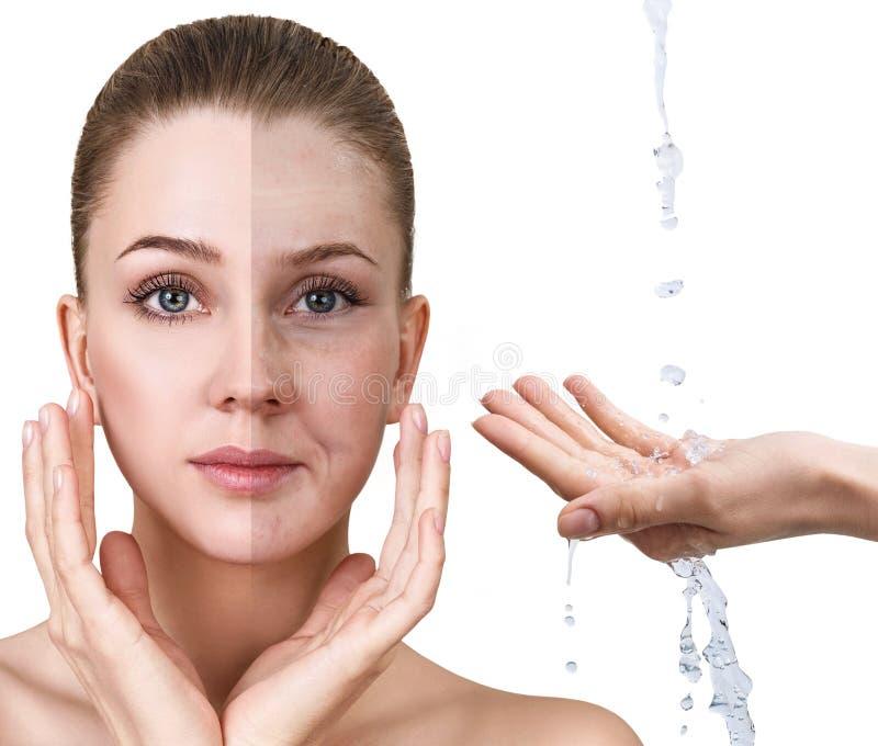 Frau ` s Gesicht vor und nach Verjüngung lizenzfreies stockbild