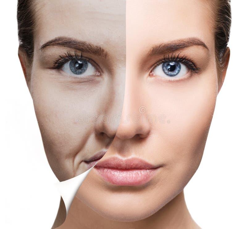 Frau ` s Gesicht vor und nach Verjüngung lizenzfreies stockfoto