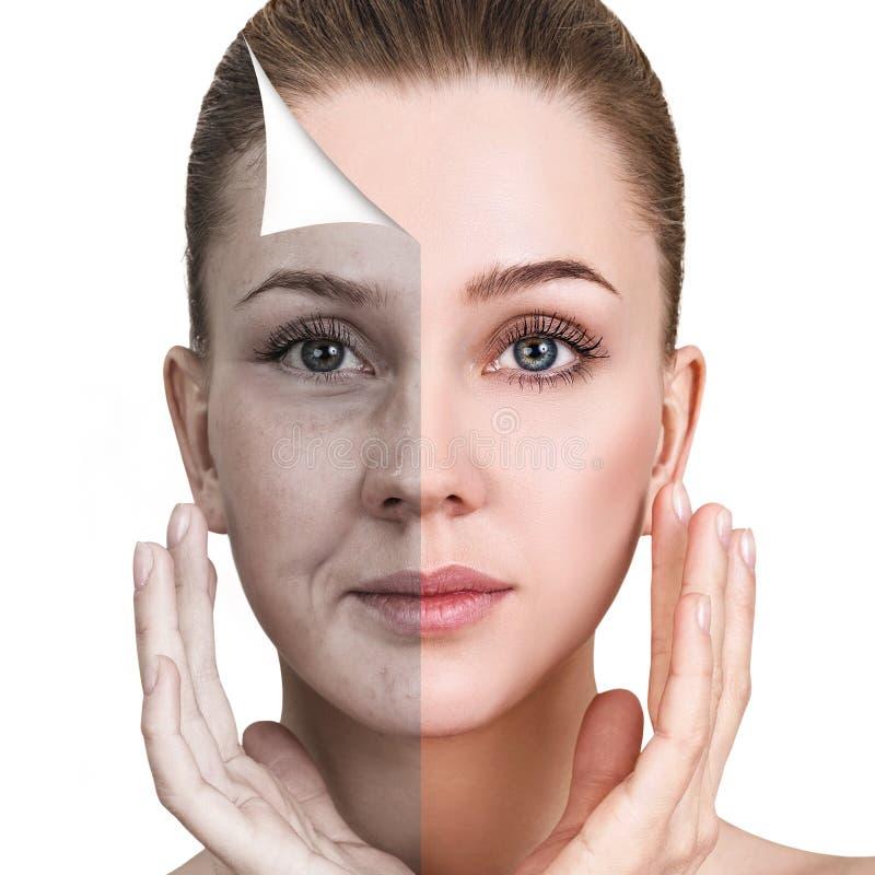 Frau ` s Gesicht vor und nach Verjüngung lizenzfreie stockfotos