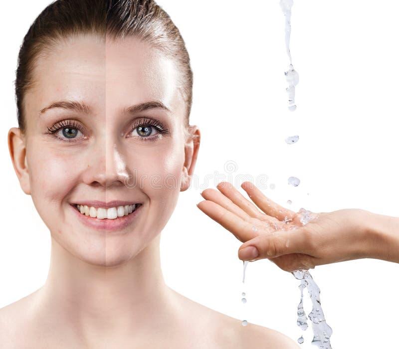Frau ` s Gesicht vor und nach Verjüngung lizenzfreie stockbilder
