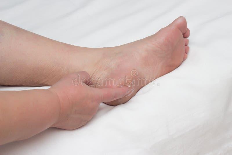 Frau schmiert Ferse auf ihrem Bein mit Heilsalbe für die Behandlung von Fersensporen, Binde, der Kopienraum, medizinisch, Nahaufn stockfotografie