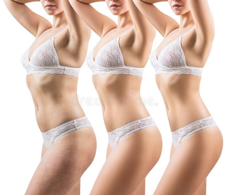 Frau vor und nach Gewichtsverlust Körper, der Konzept abnimmt stockfotografie